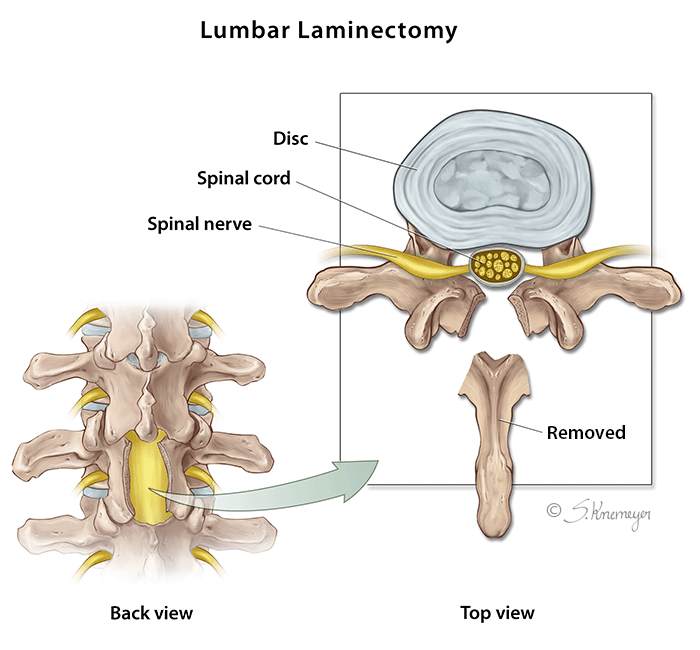 Lumbar Laminectomy