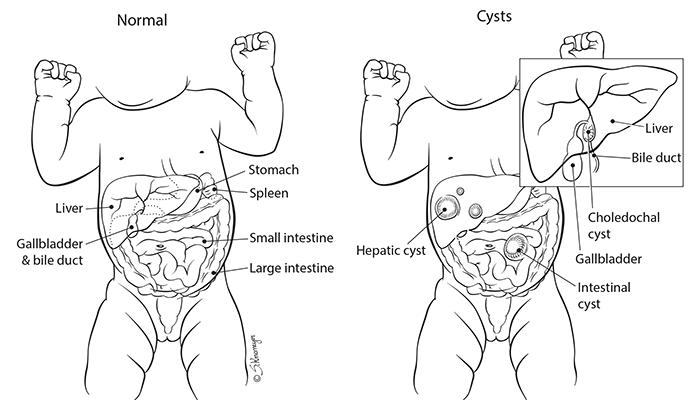 Abdominal Cysts