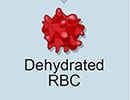 RBC dehydration due to PIEZO1 Allele